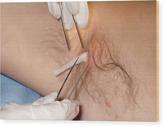 Treatment Of An Underarm Abscess Wood Print by Dr P. Marazzi/science Photo Library