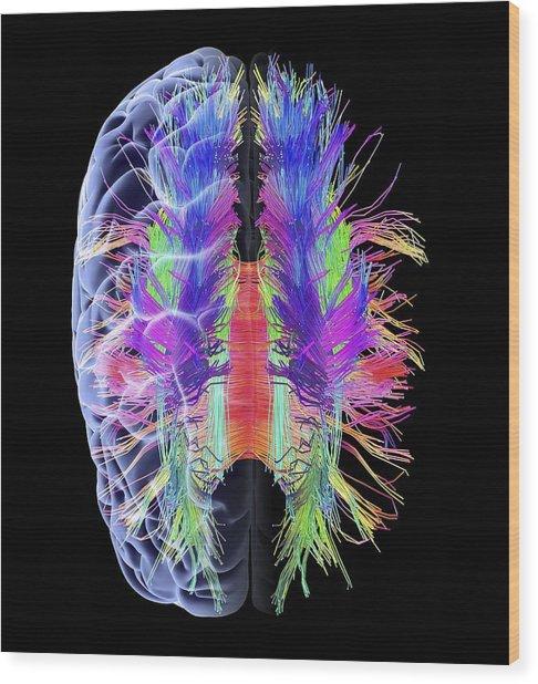 White Matter Fibres And Brain, Artwork Wood Print