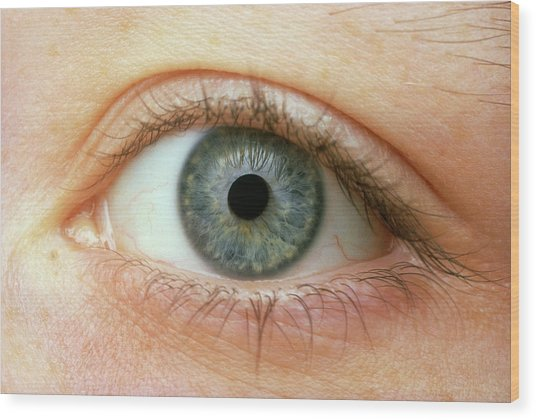 Woman's Right Eye Wood Print by Martin Dohrn/science Photo Library