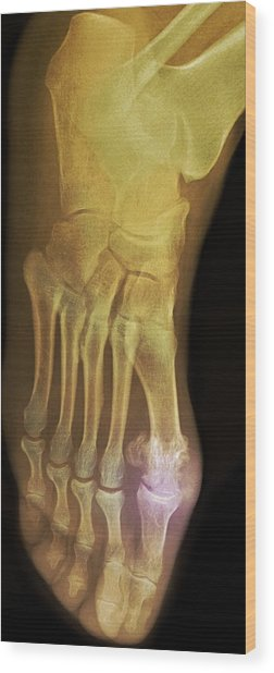 'gouty Foot, X-ray' Wood Print by Du Cane Medical Imaging Ltd