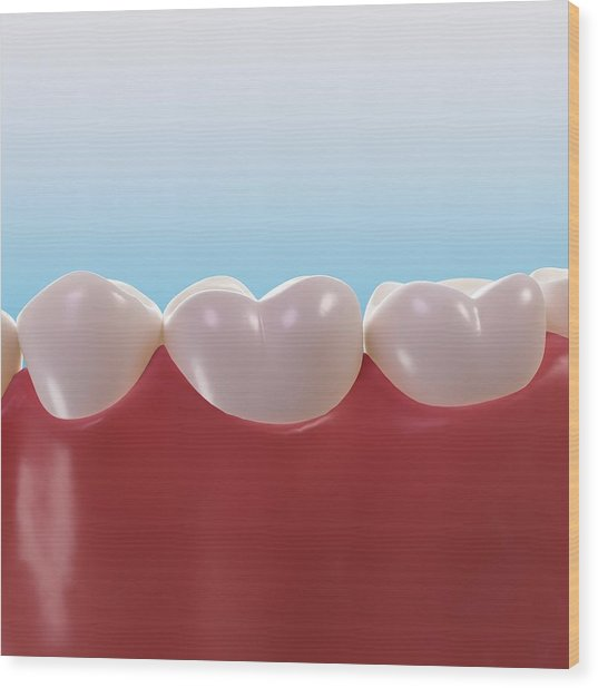 Healthy Teeth, Artwork Wood Print by Sciepro