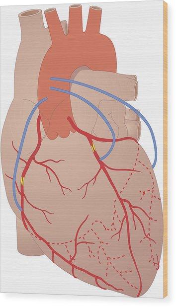 Heart, Artwork Wood Print by Peter Gardiner