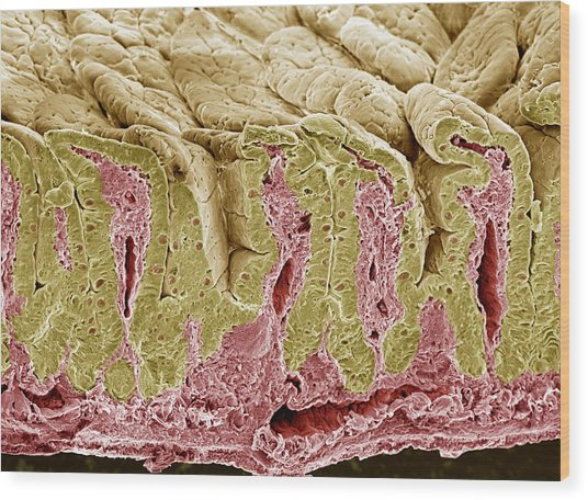 Intestinal Lining, Sem Wood Print by Steve Gschmeissner