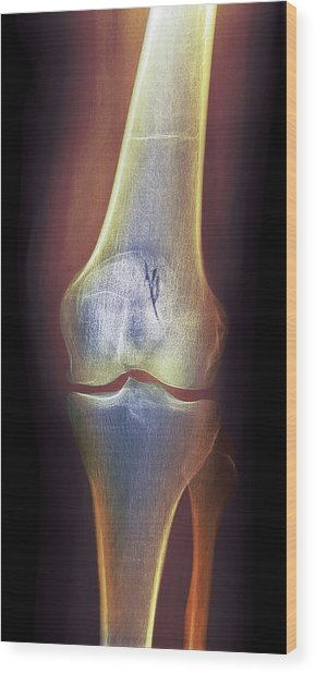 Arthritic Knee, X-ray Wood Print by Du Cane Medical Imaging Ltd