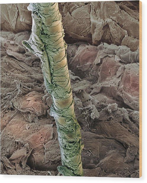 Ear Canal, Sem Wood Print by Steve Gschmeissner