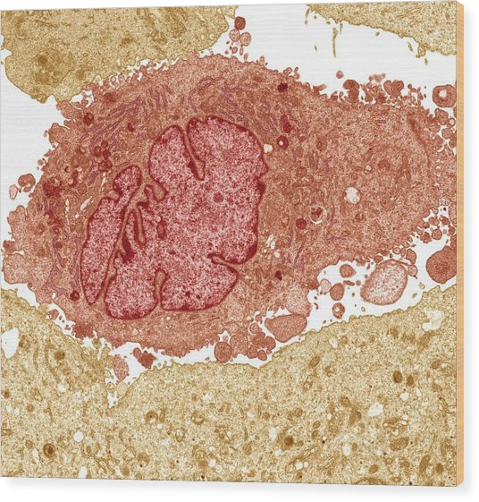Lung Cancer Cell, Tem Wood Print by Steve Gschmeissner