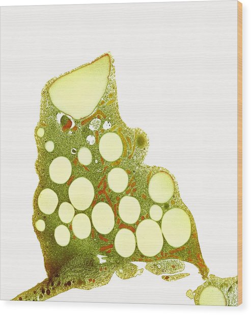 Fat Cells, Tem Wood Print by