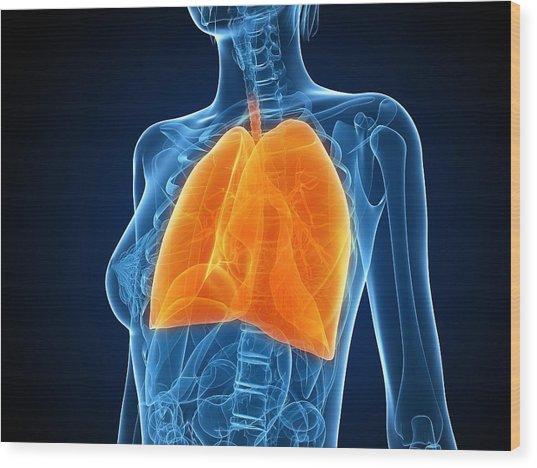 Healthy Lungs, Artwork Wood Print by Sciepro