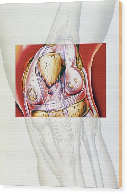 Artwork Showing Rheumatoid Arthritis Of The Knee Wood Print by John Bavosi