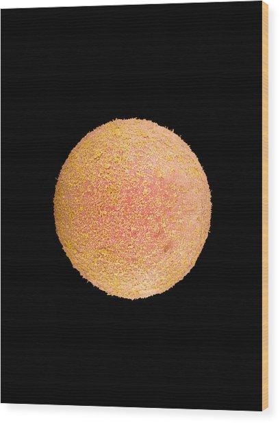 Coloured Sem Of A Fertilized Human Egg (zygote) Wood Print by Dr Yorgos Nikas