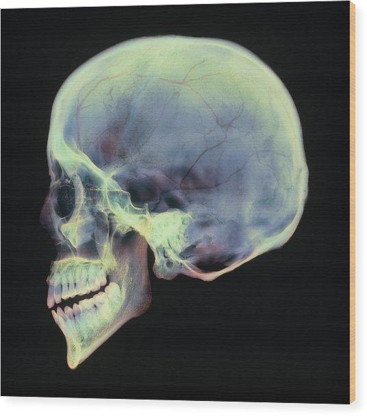 Human Skull, X-ray Wood Print by D. Roberts