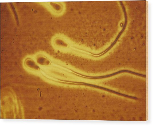 Light Micrograph Of Sperm From A Bull Wood Print by Dr T E Thompson