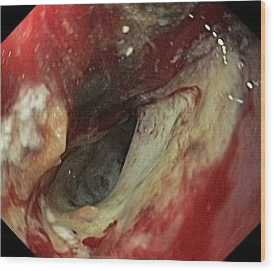 Pancreatic Cancer In The Duodenum Wood Print by Gastrolab