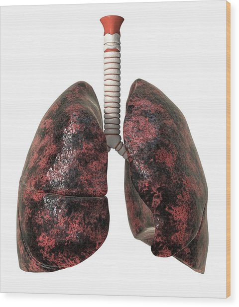 Smoker's Lungs, Artwork Wood Print by David Mack