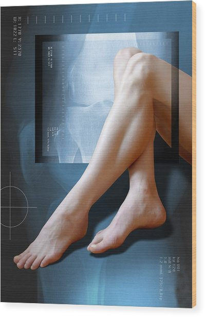Woman's Legs, With Knee X-ray Wood Print by Miriam Maslo