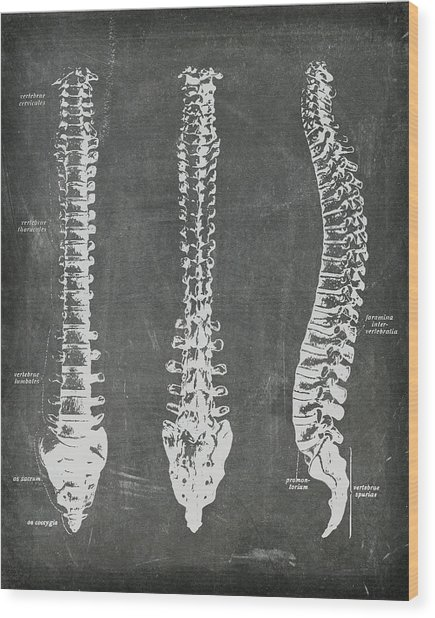 Chalkboard Anatomical Spines Wood Print