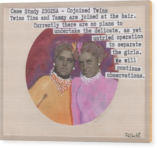 Conjoined Hair Twins Medical Experiment  Wood Print