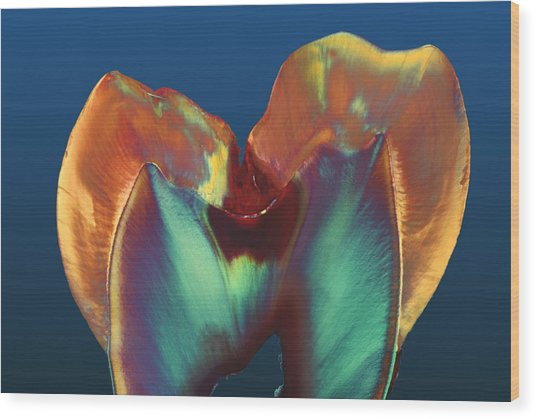 Polarised Lm Of A Molar Tooth Showing Decay Wood Print