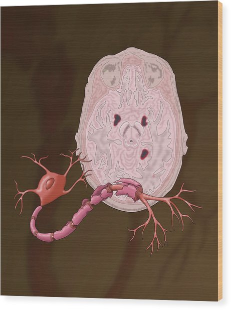 Multiple Sclerosis Wood Print by Monica Schroeder