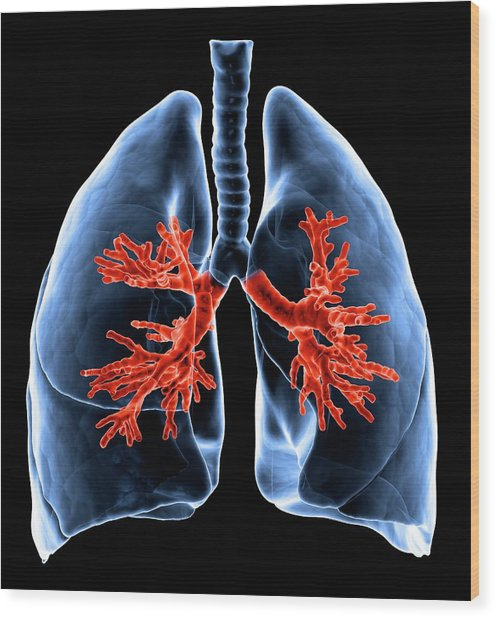 Healthy Lungs, Artwork Wood Print by Science Photo Library - Andrzej Wojcicki