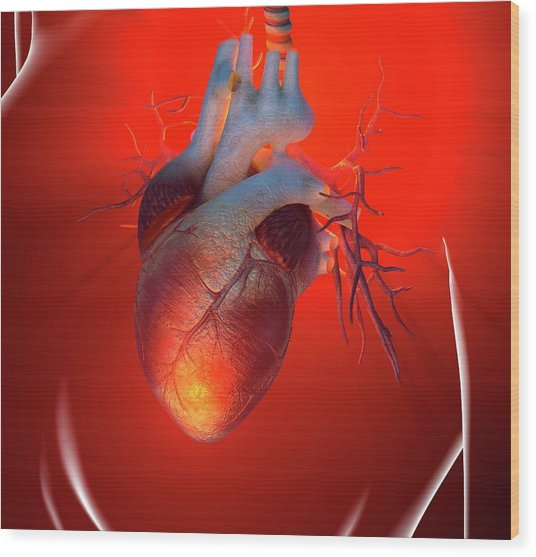 Heart Attack, Conceptual Artwork Wood Print by Science Photo Library - Roger Harris