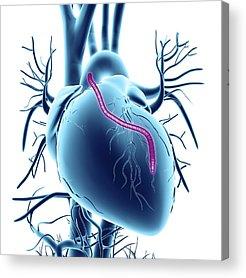 Cardiovascular Disease Acrylic Prints