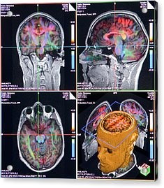 Advanced Mri Brain Scans Acrylic Print by Philippe Psaila/science Photo Library
