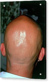 Alopecia Areata (hair Loss) Over The Scalp Of Man Acrylic Print by Dr P. Marazzi/science Photo Library