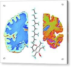 Alzheimer's Brain And Vitamin E Molecule Acrylic Print by Alfred Pasieka