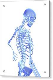 Back Pain Acrylic Print