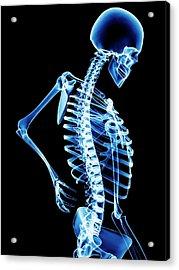 Back Pain Acrylic Print by Pasieka