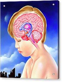 Brain And Childhood Depression Acrylic Print