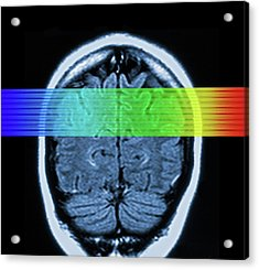 Brain Mri Scan Acrylic Print by Alfred Pasieka