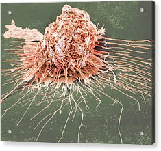 Bronchial Epithelium Acrylic Print by Steve Gschmeissner