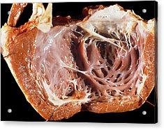 Cardiomyopathy Acrylic Print by Pr. R. Abelanet - Cnri