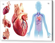 Child's Heart Anatomy Acrylic Print by Pixologicstudio/science Photo Library