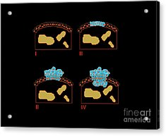 Colon Cancer Stages, Artwork Acrylic Print by Francis Leroy, Biocosmos