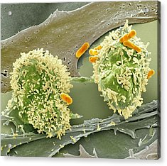 Dividing Cancer Cell, Sem Acrylic Print by Science Photo Library