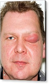 Eyelid Abscess Acrylic Print by Dr P. Marazzi/science Photo Library