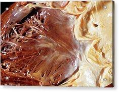 Fatty Heart Acrylic Print