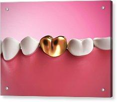 Gold Filling In Tooth Acrylic Print by Sebastian Kaulitzki