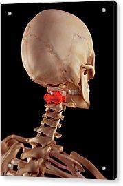 Human Upper Neck Pain Acrylic Print by Sebastian Kaulitzki/science Photo Library