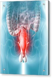Inflamed Rectum Acrylic Print by Sciepro