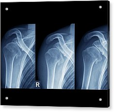Injured Shoulder Acrylic Print by Zephyr