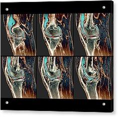 Knee Sprain Acrylic Print by Zephyr