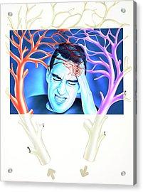 Migraine Acrylic Print by John Bavosi