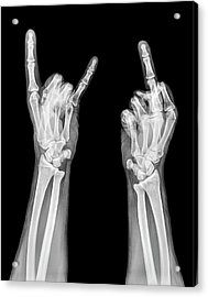 Obscene Gestures X-ray Acrylic Print by Photostock-israel