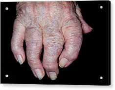 Osteoarthritis Of The Hand Acrylic Print by Dr P. Marazzi/science Photo Library