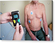 Portable Ecg Monitor Being Fitted Acrylic Print