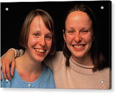 Portrait Of Identical Twins In Adolescence Acrylic Print